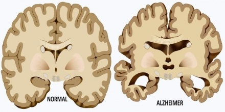 46 Million Americans May Have Pre Alzheimer Markers