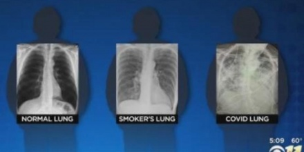 Post COVID Lungs Worse Than The worst Smokers Lungs Surgeon Says